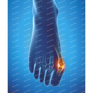 Epitact Hallux Valgus Protection Pointure 42-45 1 pièce